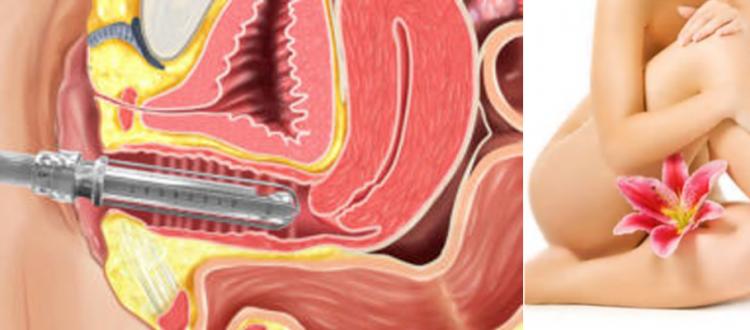 Laser Vaginal Tightening and Rejuvenation