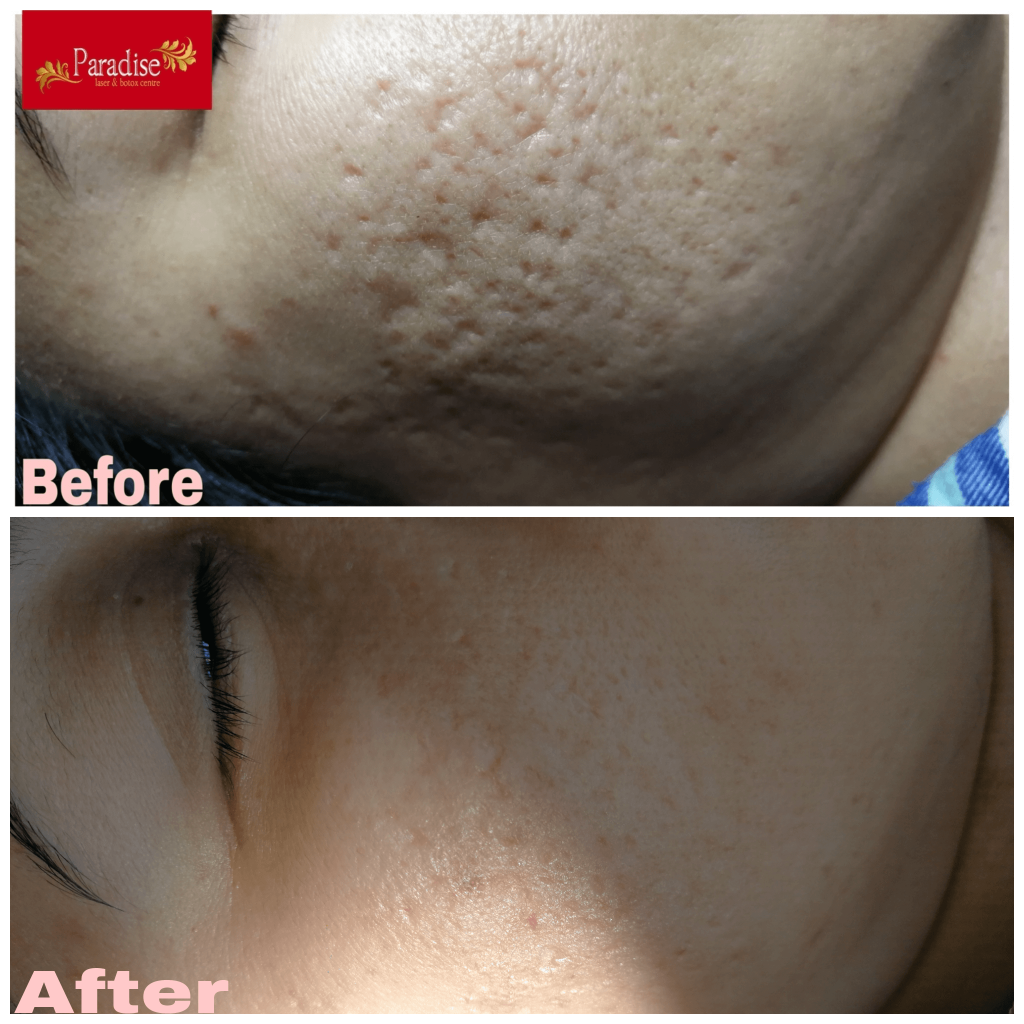 acner scar